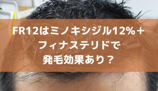 フォリックスFR12はミノキシジル12%+フィナステリドで発毛効果あり?