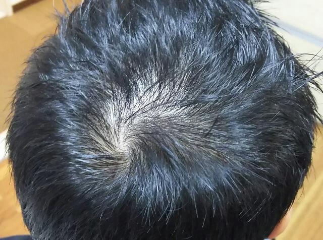 フォリックスFR16の頭頂部への効果