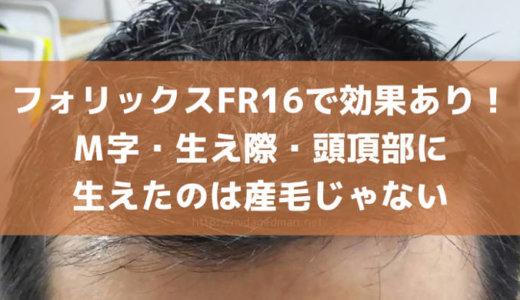 フォリックスFR16で効果あった!M字・生え際・頭頂部に生えたのは産毛じゃない